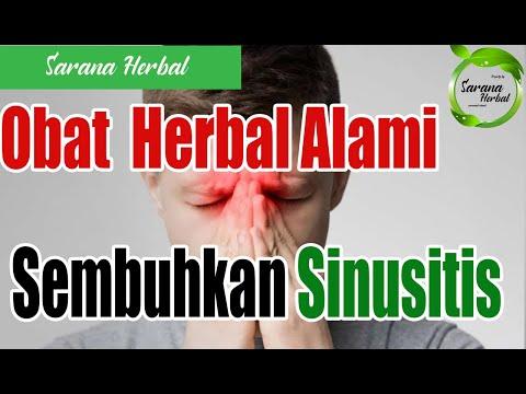 ⭕resep-obat-herbal-alami-sinusitis-ampuh-dr.-zaidul-akbar-,-jsr