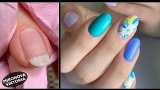 Яркий летний маникюр покрытие ногтей гель лаком комбинирований маникюр