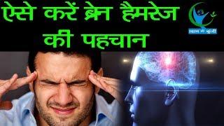 सावधान, इन बीमारियों के कारण हो सकता है ब्रेन हैमरेज...  Brain Hemorrhage causes and symptoms