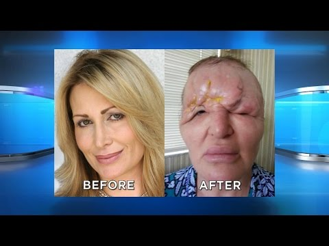 Protect Yourself from Facial Injection Disfigurement