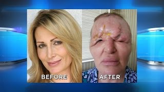 Protect Yourself from Facial Injection Disfigurement thumbnail