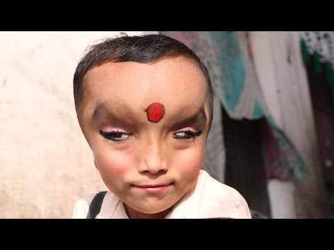Boy With Mystery Condition Is Worshipped As A God
