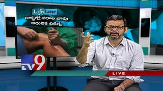 Varicose Veins || Modern treatment - Lifeline - TV9