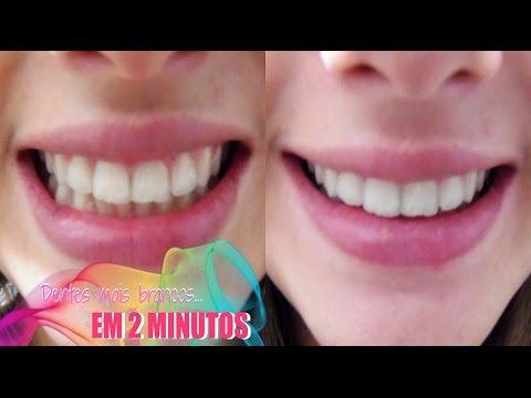 Dentes Mais Brancos Em 2 Minutos Youtube
