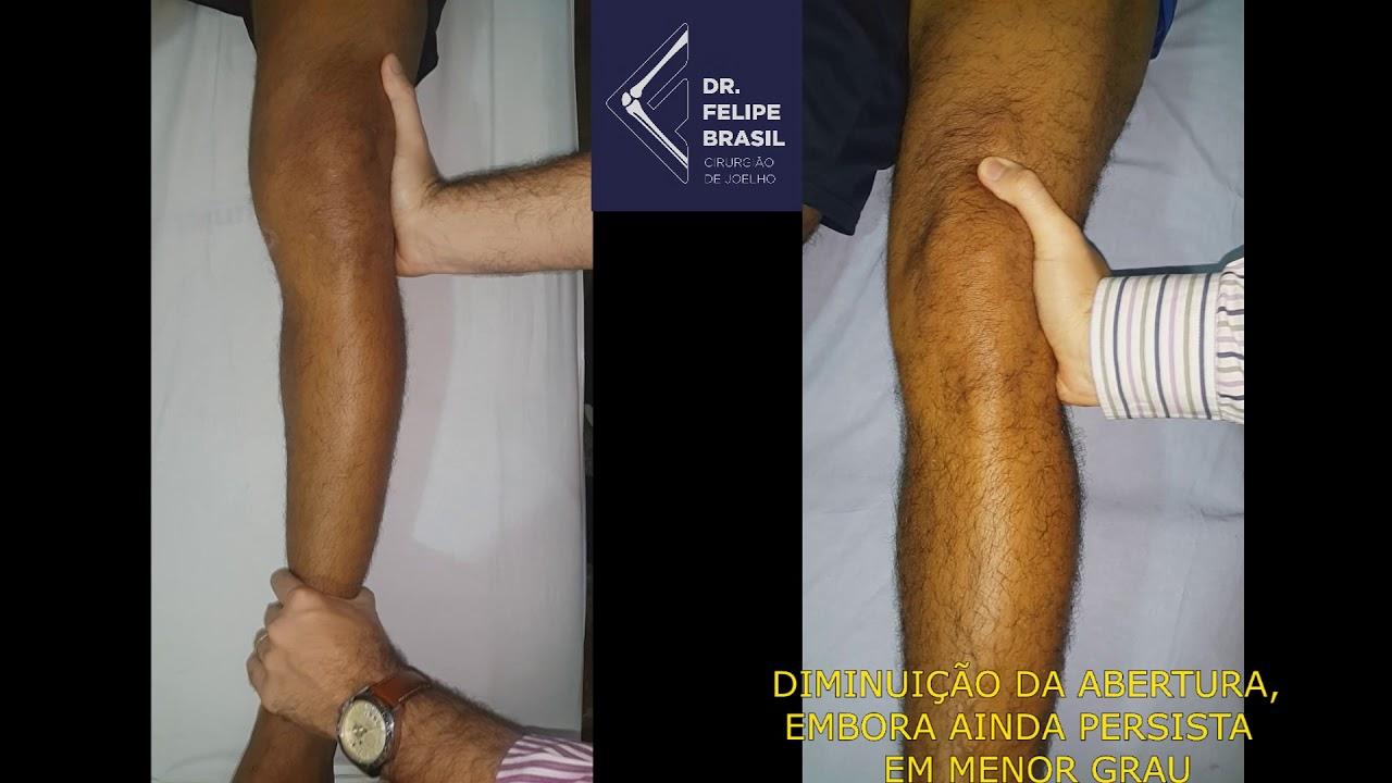 Ligamento medial sintomas colateral rompimento