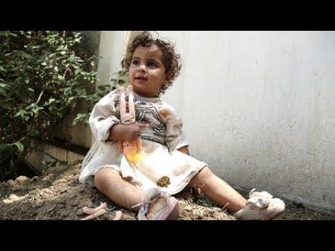 UN Report: Saudi Coalition Massacred Hundreds of Children in Yemen