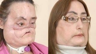 Первая в мире пересадка лица История Конни Калп