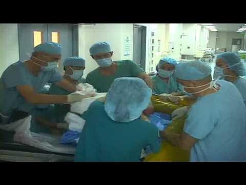 Phẫu thuật người đàn ông có khối u 90kg tại bệnh viện FV