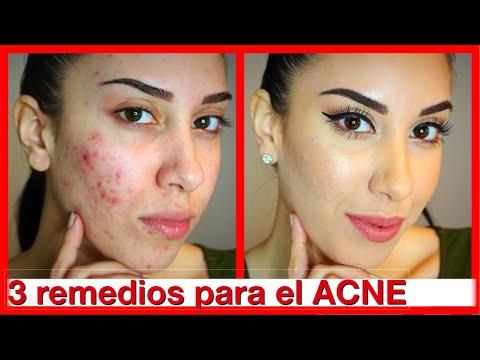 Remedios caseros para el acne - La Guia de Los Remedios