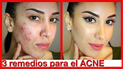 hqdefault - Remedios Caseros Para Acne De Adulto