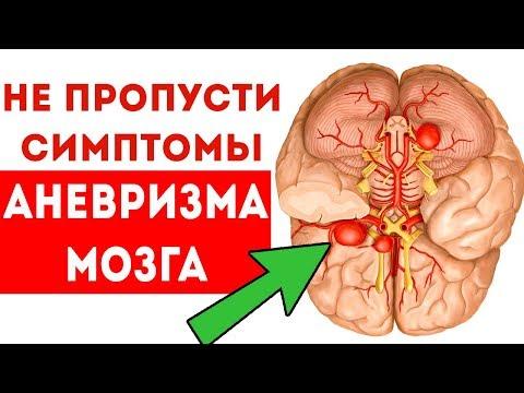 5 ОПАСНЫХ симптомов, когда аневризма мозга 🌳 Здоровье и долголетие
