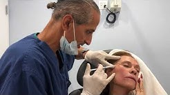 Temple Lift with Radiesse by Dr Taj Khan, Edgewater & Hoboken Med Spa & 1Aesthetic NYC