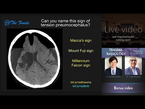 Trauma Radiology Course Finale - first 4 minutes!