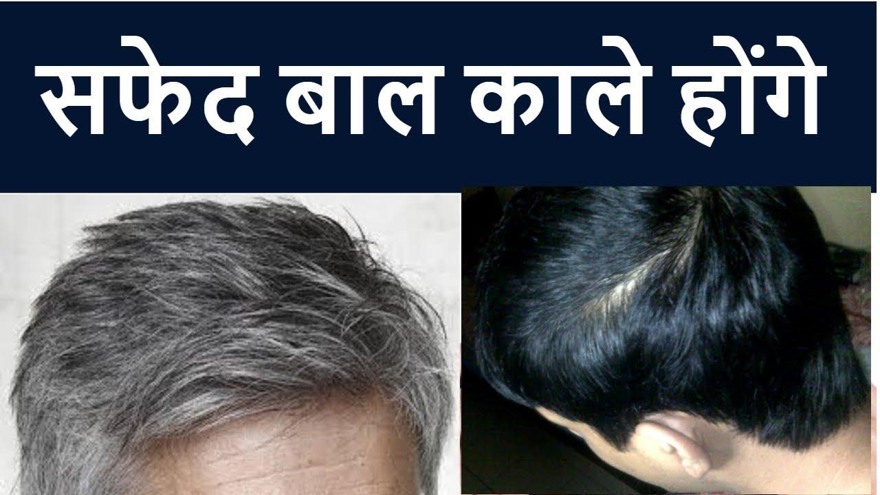 Grey Hair ? Permanent Treatment For Grey Hair ? Homeopathic medicine for  Grey hair