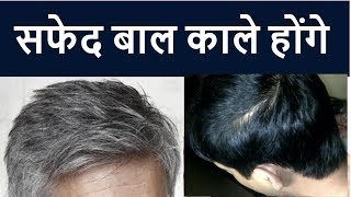 Grey Hair ? Permanent Treatment For Grey Hair ? Homeopathic medicine for Grey hair