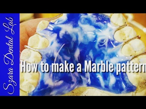 Orthodontic how to make Marble Acrylic Designer Retainer