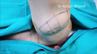 Lipoma removal surgery cost in India Multiple Lipoma Insurance mediclaim  meidcover cover