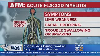 Children's Hospital Confirms 3 Cases Of Mysterious Polio-Like Illness In Pittsburgh