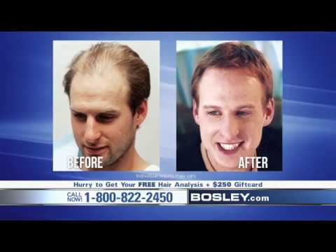 Are You Tired Of Losing Your Hair? (Hair Transplant)