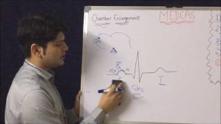 ECG - CHAMBER ENLARGEMENT - BASICS & CONCEPTS  3a