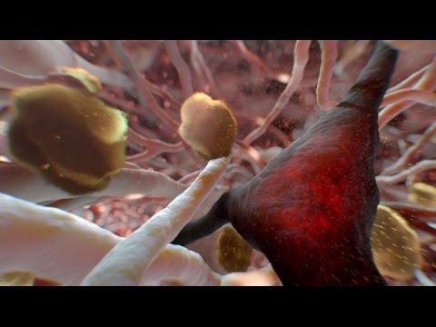 Can Alzheimer's Be Stopped? | NOVA