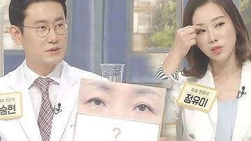 이마 주름으로 인한 '눈꺼풀 처짐' 실명을 부르는 건강 적신호! (건강 대해부) @좋은아침 5363회 20180720