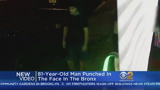 81-Year-Old Punched In Face, Chases Attacker In Bronx