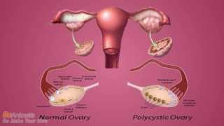 How to Permanently Cure Polycystic Ovary Syndrome (PCOS)?