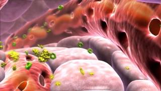 Как развивается сахарный диабет 2 типа?
