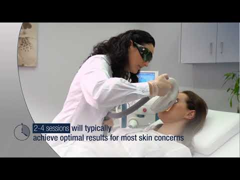 IPL Treatment Video