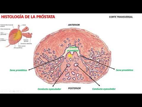 iperplasia prostatica benigna google scholar
