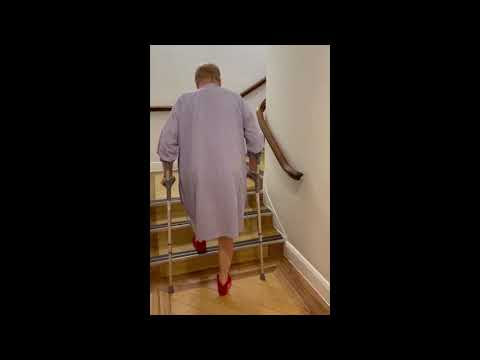 Ian is climbing stairs pain-free the day after hip replacement