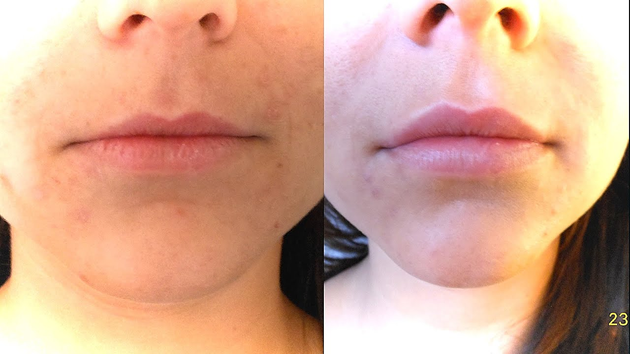 faceland lippen