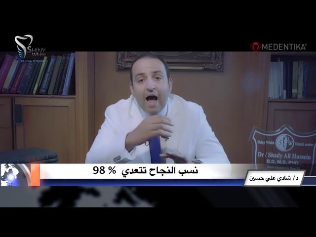 زراعة الاسنان بنسبة نجاح 98% فى مراكز شاينى وايت فى مصر