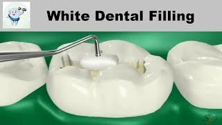 Composite Dental Filling Procedure