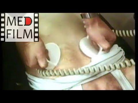 Инфаркт миокарда. КЛИНИЧЕСКАЯ СМЕРТЬ. Массаж сердца © Myocardial Infarction, Death, Heart Massage