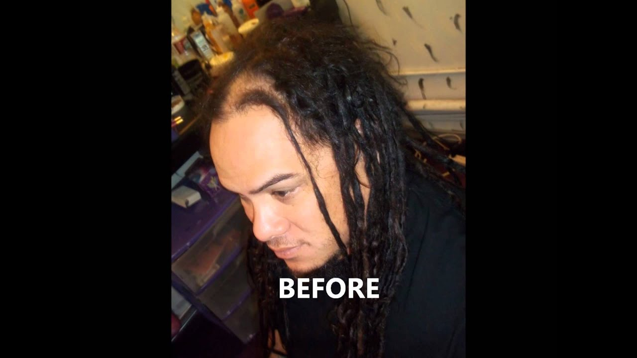 Dreadlock Repairs For Thinning Dreadlocks Youtube