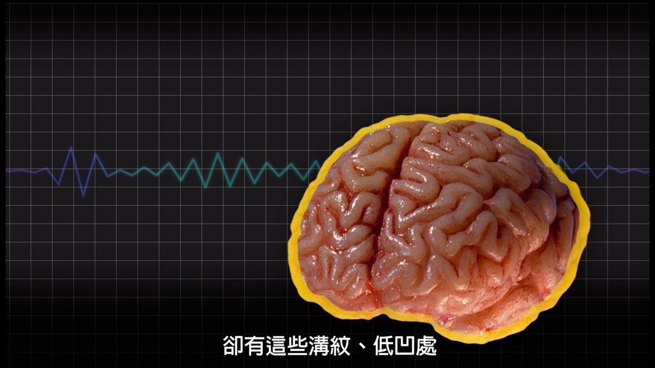 每日酷知識:人腦為什麼皺皺的? - YouTube