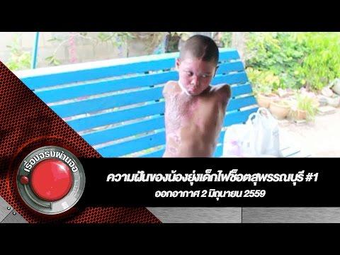 ความฝันของน้องยุ่งเด็กไฟช็อตสุพรรณบุรี #1 l เรื่องจริงผ่านจอ 02-06-2559