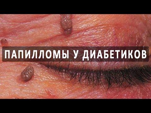 Папилломавирус у женшин. Вирус папилломы человека. Типы