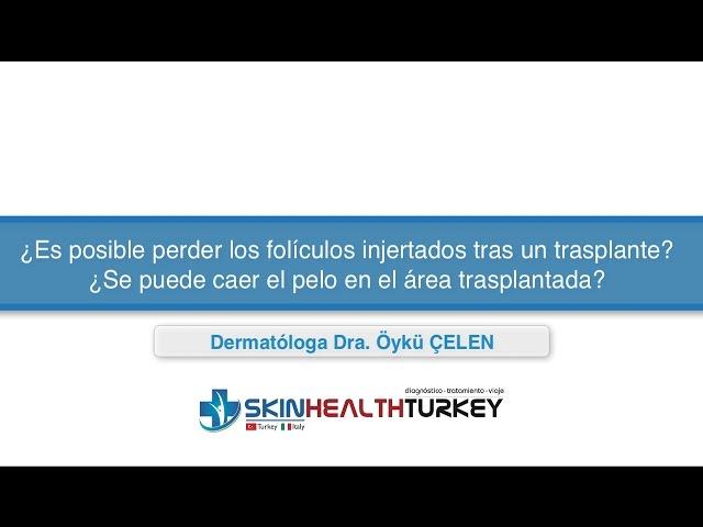 ¿Es posible perder los folículos tras un trasplante? ¿Se puede caer el pelo en el área trasplantada?