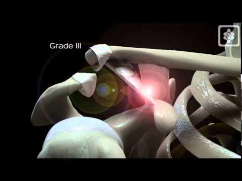 ACJ dislocation mechanism Shoulderdoc