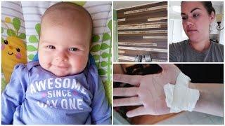 Smiling Baby - Burn Injury - Reno Update || Week 7  ♡ Christinegslife