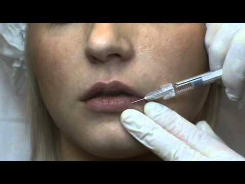 Коррекция, увеличение губ, контурная пластика