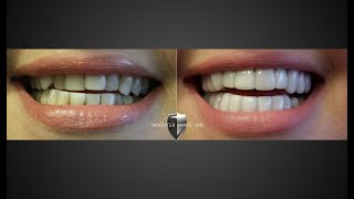 Instasmile v Brighter Image Lab Smile Makeover Review ! SEE who you Believe?