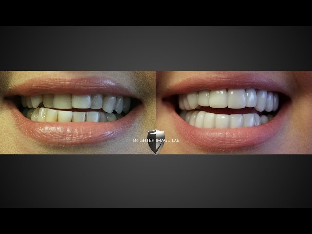 Instasmile v Brighter Image Lab Smile Makeover Review! ¿VES a quién crees?