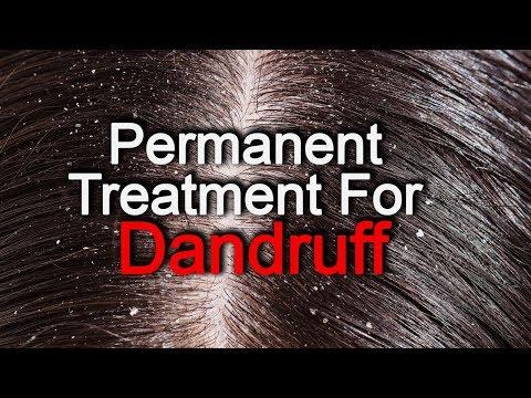 Dandruff Treatment At Home In Hindi | Dandruff Home Remedies | Dandruff Solution