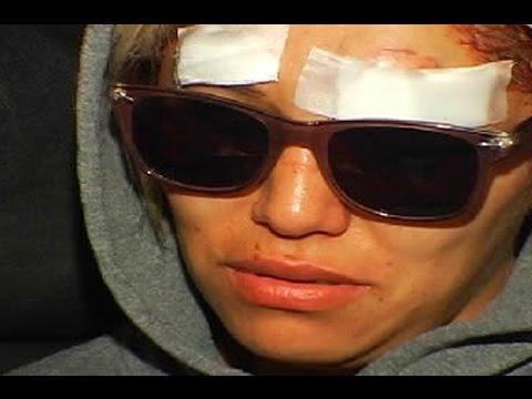 Espect culos mujeres de la far ndula fueron agredidas por for Espectaculos de la farandula