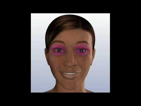 Cắt Mắt 2 Mí Hàn Quốc - Phẫu Thuật Thẩm Mỹ Mắt | Bệnh Viện Thẩm Mỹ Việt Mỹ