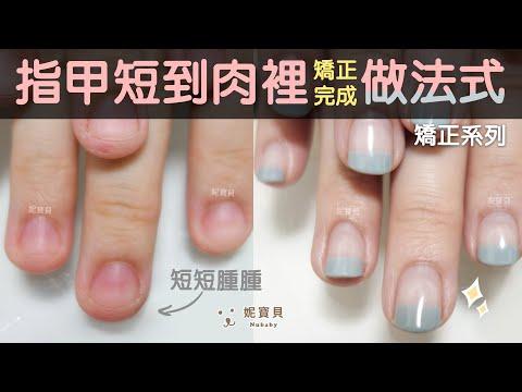 問題指甲矯正-咬指甲、摳指甲,指甲短到肉裡,矯正完成做美美法式藝術指甲
